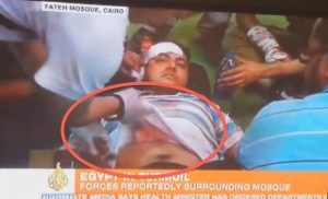 Exposed: Al Jazeera Airs Fake Brotherhood Injuries and Deaths