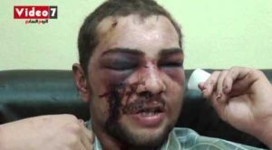 Inside Egypt's Terrorist Camps: Torture, Rape, Mass Murder